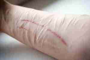 Self Harm Counselling & Therapy